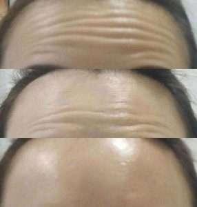 8b7bd8b3-upper-face-lift-rejuvenate-picture-3_0nc0nc0m80nc00k000