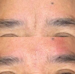 botox-wrinkle-picture