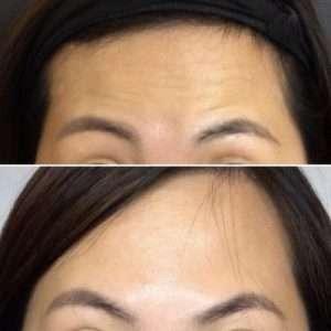 d9bce070-forehead-lines-picture_0ku0ky0ku0ky000000-400x400