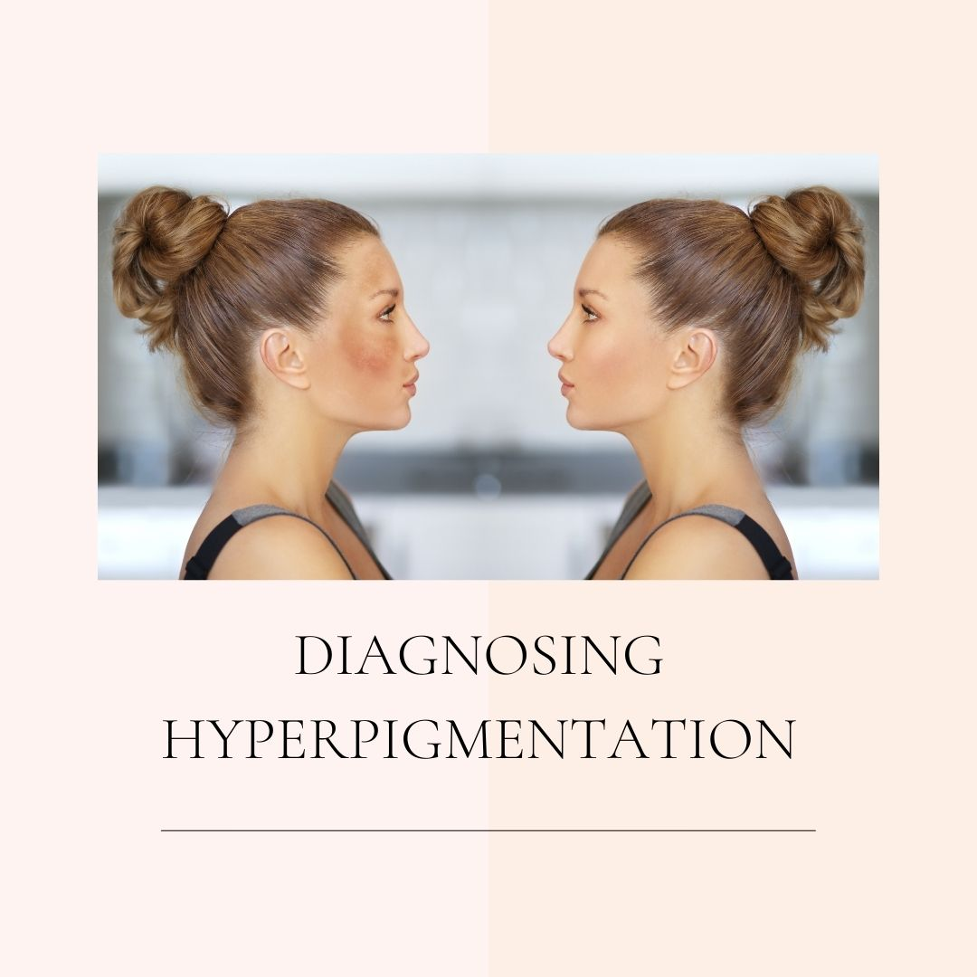 DIAGNOSING HYPERPIGMENTATION IN RICHMOND HILL