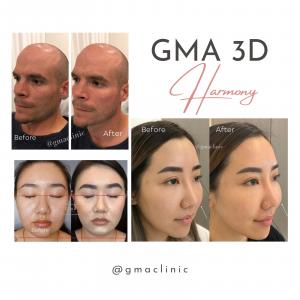 GMA 3D Harmony