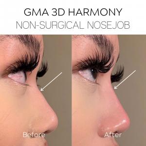 GMA 3D Harmony Nose copy