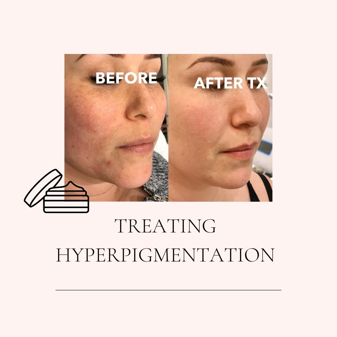 TREATING HYPERPIGMENTATION IN MARKHAM PATIENTS